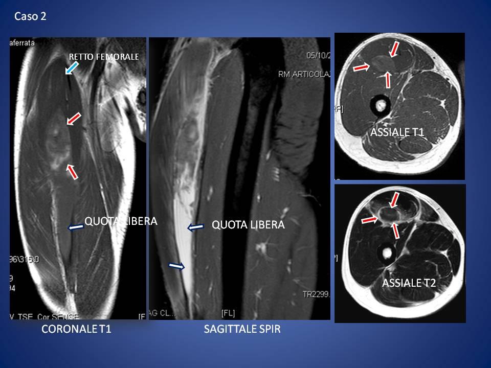 Le lesioni muscolari radiologia ortopedica for Interno coscia uomo